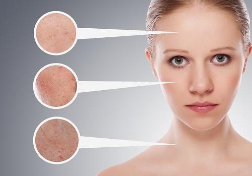 Un sencillo y útil tratamiento casero para la piel