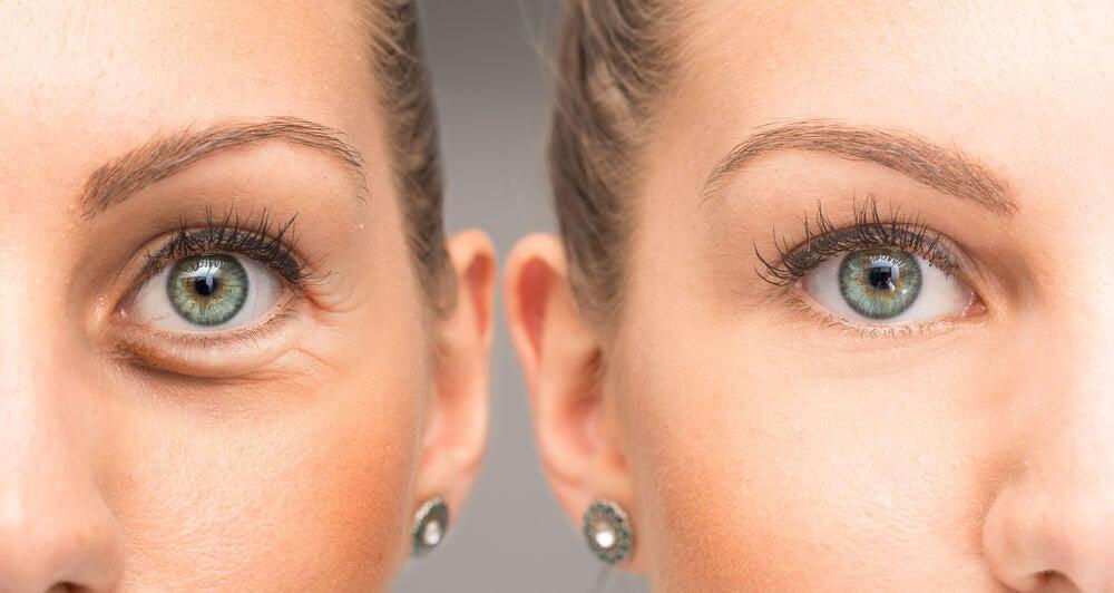 Contorno de ojos arrugas