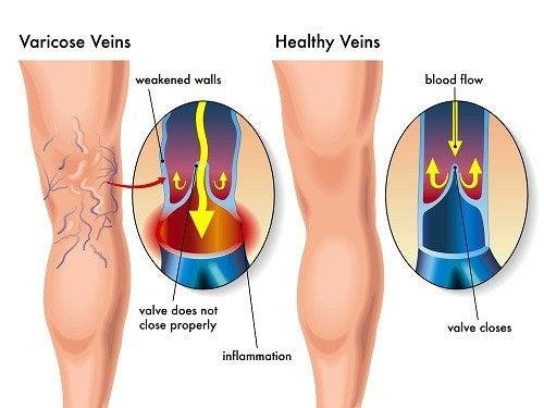 Diagrama de los efectos de las varices en las piernas