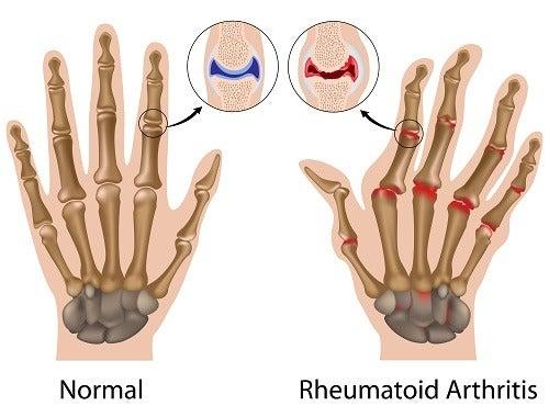 Artritis reumatoide, cómo controlar sus síntomas