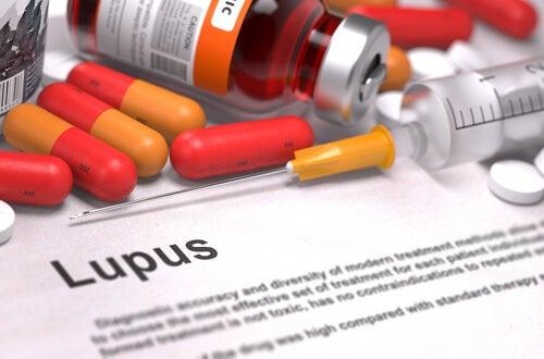 Síntomas, diagnóstico y tratamiento del lupus