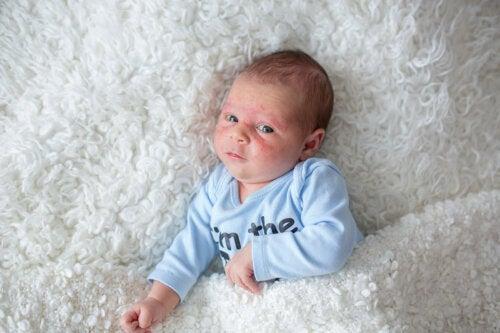 Mi bebé tiene un sarpullido. ¿Qué es?