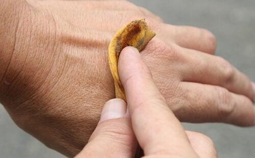 Cáscara de banano sobre la piel