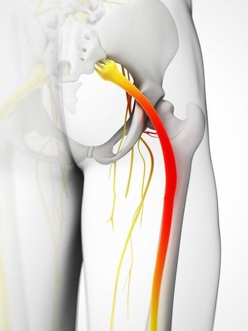 causar dolor en el nervio ciático