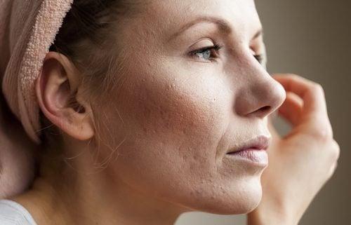 Cómo tratar los poros dilatados