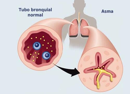 Tubos con asma