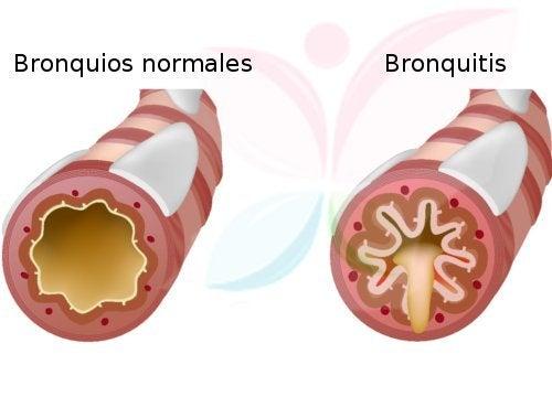 Bronquitis normales y malos