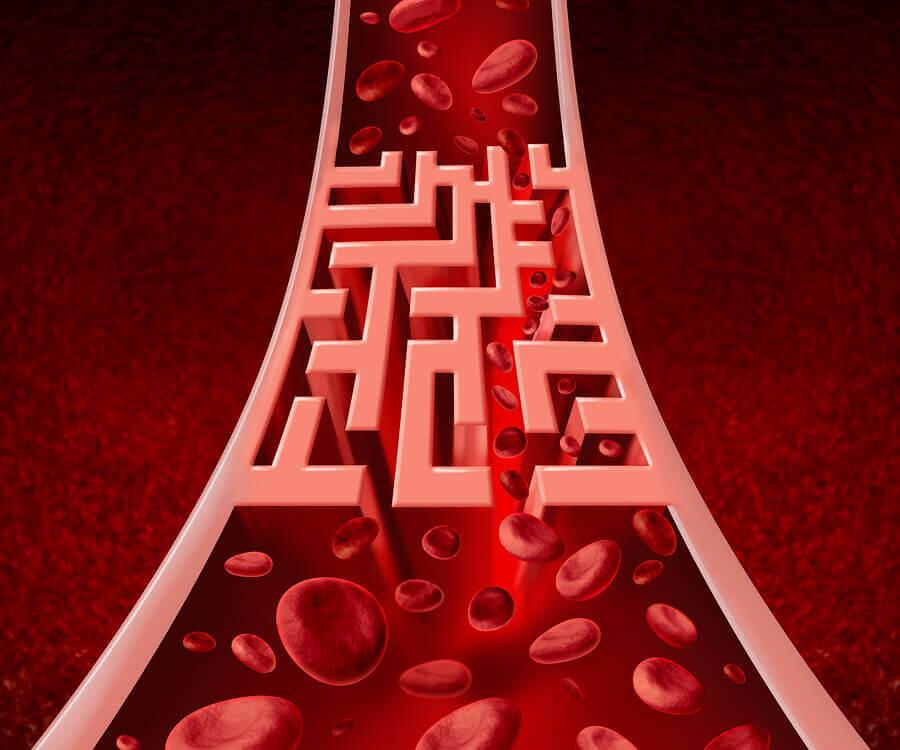 Mala circulación de arterias