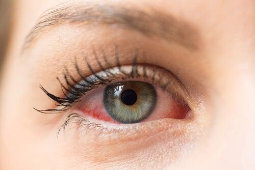 Mujer con ojos rojos.