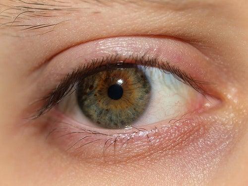 Cómo tratar los ojos secos