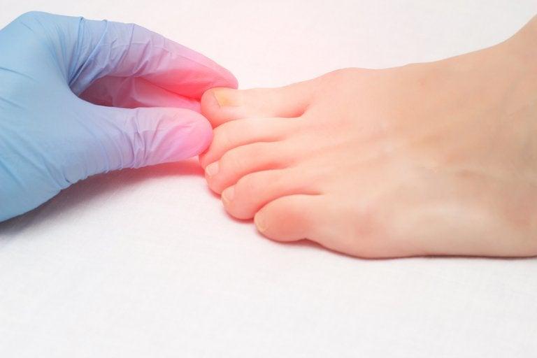 Consejos útiles para la onicomicosis