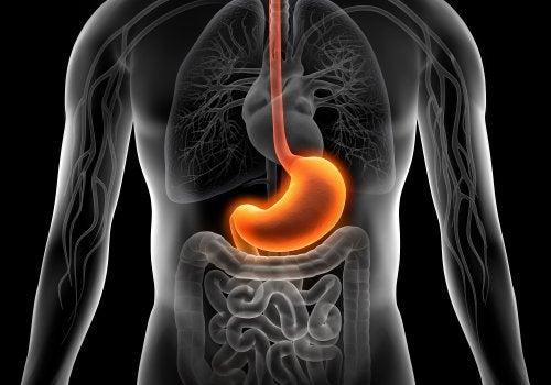 como curar gastritis