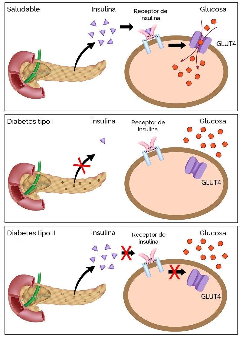 Glucosa-diabetes