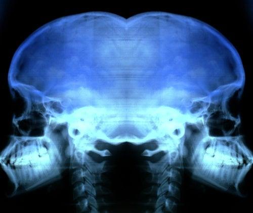Remedios caseros para la osteoporosis