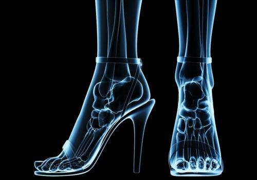 Consecuencias para la salud del uso excesivo de zapatos de tacón