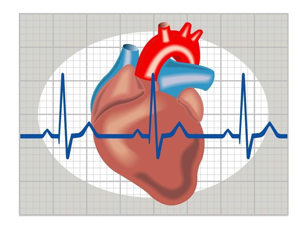 Causas cardíacas de pérdida de conocimiento