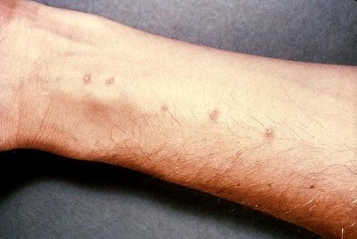 Tratamientos caseros para la dermatitis alérgica de contacto