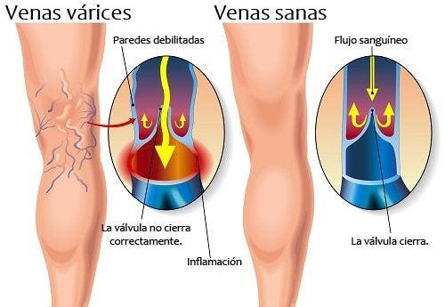 Medicamentos para el dolor de varices en las piernas