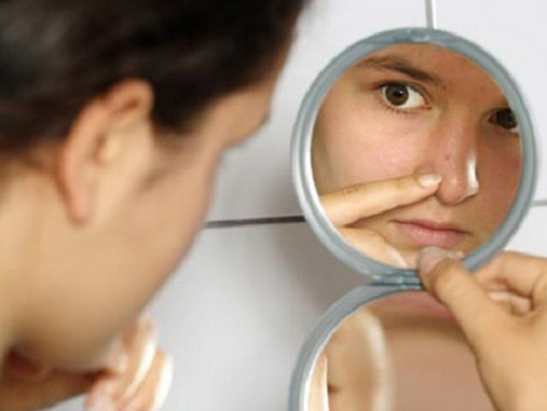 4 remedios naturales contra el acné