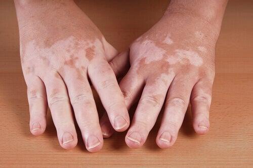 Manos con vitiligo