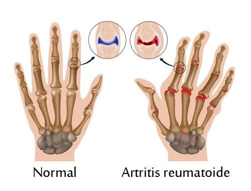 7 pasos para superar la artritis reumatoide