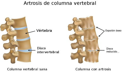 artrosis de columna
