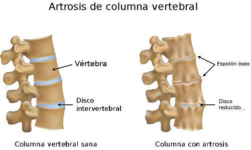 Si es visible la hernia intervertebral sobre los rayos X