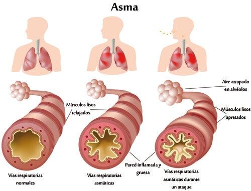 ¿Qué hacer si se sufre de asma crónico y alergias?