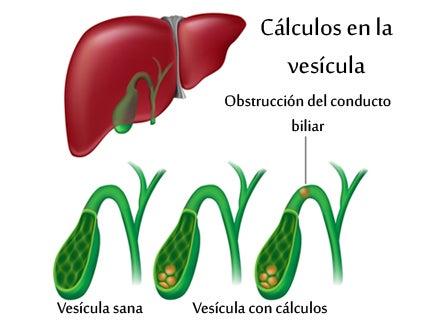 Anatomía de la vesícula y formación de cálculos biliares.