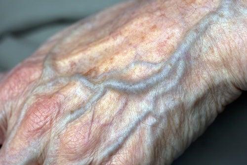 ¿Cómo mejorar la circulación en las manos?