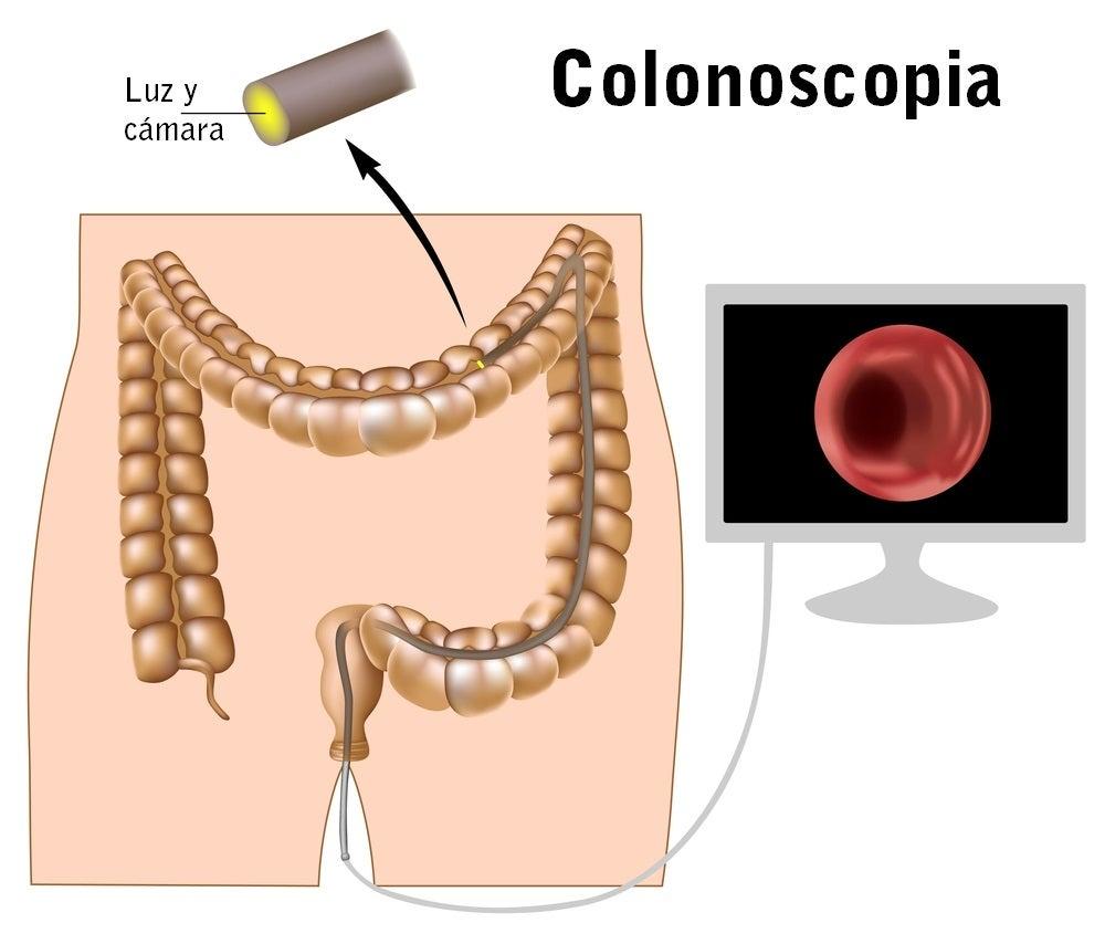 La colonoscopia para analizar el colon