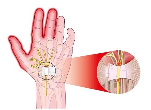 Síndrome del túnel carpiano: causas y síntomas