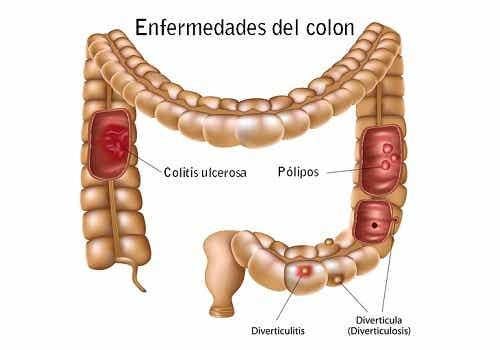 Enfermedades comunes del colon: ¿Cómo prevenirlas?