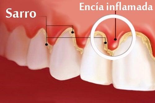 dolor de dientes y encias sangrantes