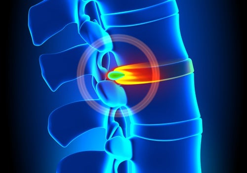 Hernia discal, ¿cómo tratarla y prevenirla?