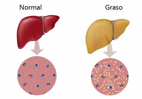 Consejos para combatir el hígado graso