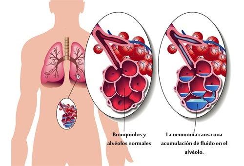 Dieta para hernia discal
