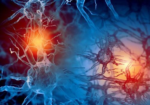 epilepsia y neuronas