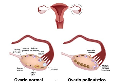 puede haber embarazo con quistes en los ovarios