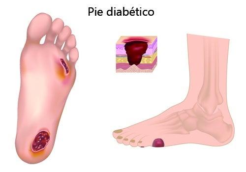 Pie diabético: prevención y cuidados