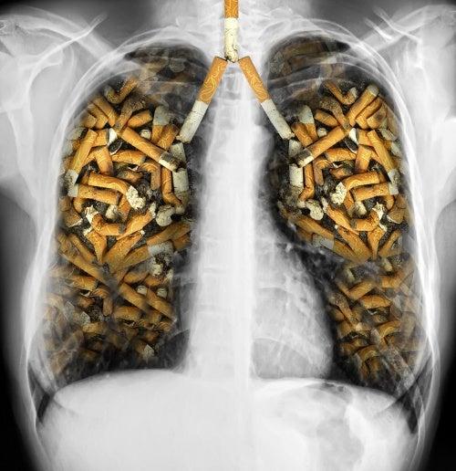 Pulmones cigarros