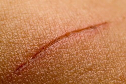 Remedios naturales para atenuar las cicatrices recientes