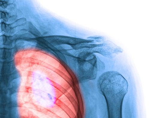 Sistema-respitarotio-problema-pulmon