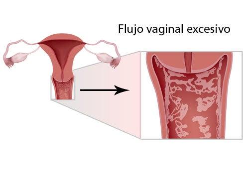 Síntomas, tratamientos y prevención de la vulvovaginitis