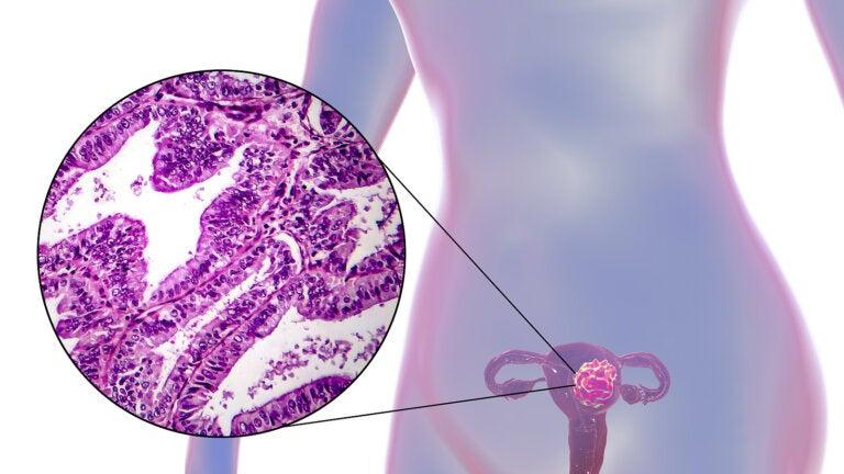 ¿Cómo combatir el cáncer de matriz?