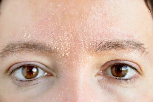 piel seca a que se debe