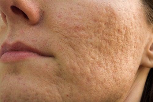 El gel de las cicatrices y las cicatrices y el acné