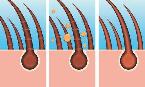 Remedios naturales para el cabello graso