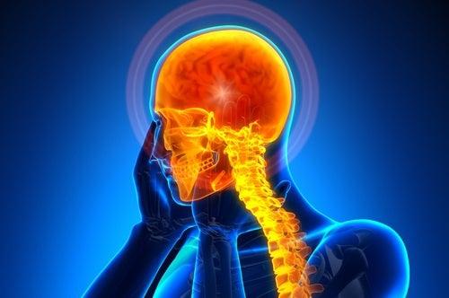 Causas y remedios para las cefaleas