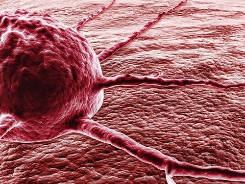 7 maneras de disminuir el riesgo de padecer cáncer